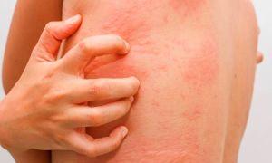 Жжение при аллергии: диагностика, лечение, препараты. что делать при жжении