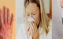 Аллергия после пилинга: причины, симптомы
