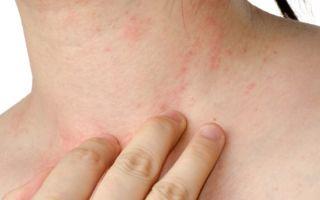 Экзема и йод: чем поможет антисептик при дерматите?