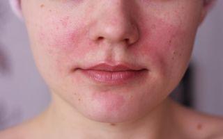 Пятна на лице при аллергии