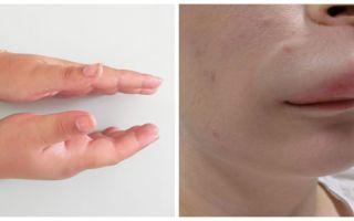 Что делать, если во время аллергического приступа возникла припухлость кожи