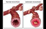 Бронхоспазм при аллергии