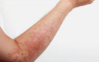 Аллергические реакции на сахарозу