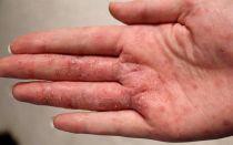 Пузырьки при экземе: причины, разновидности болезни, как вылечить кожу