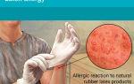 Аллергия на латекс: причины, проявления и диагностика