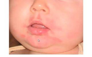 Аллергия на подбородке у ребенка, у взрослых