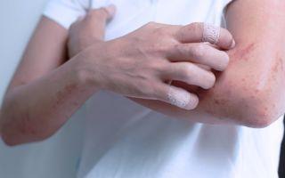 Лечение зуда при экземе: как устранить дискомфорт и жжение?
