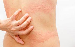 Аллергические мифы